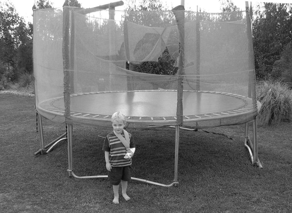 toddler with an arm injury while playing on trampoline